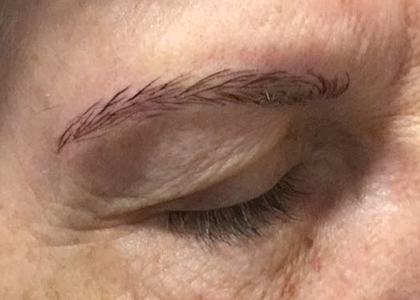 Brow Hair Replacement