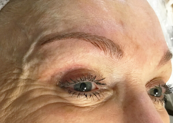 Eyebrow After