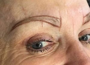 Eyebrow During Phibrow Application
