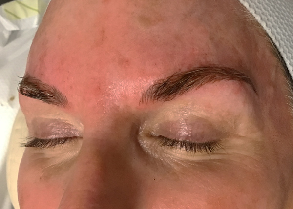 After Phibrows Microblading