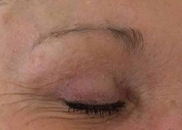 Thin Eyebrow Before